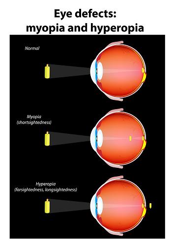 Myopia and Hyperopia